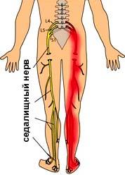 Боль в грудной клетке посередине и в спине между лопатками